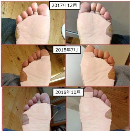 LOFE履き始めた頃と最近の足の裏。8か月たちましたが、足の裏のタコは改善せず…。